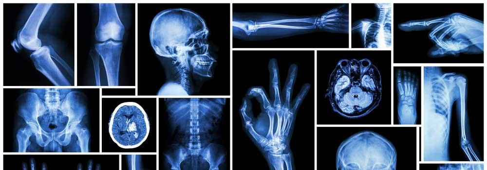 X-Rays-on-DependableBlog